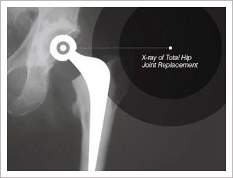 X-ray of Total Knee Joint Replacement