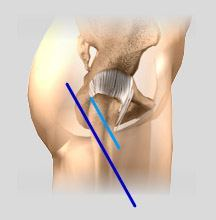 minimally-hip-replacement